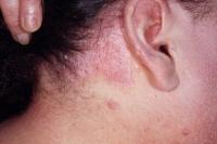 psoriasis cuir chevelu